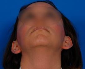 Ear Surgery (Otoplasty) Photos: Case 14 - before