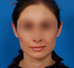 Ear Surgery (Otoplasty) Photos: Case 16 - before