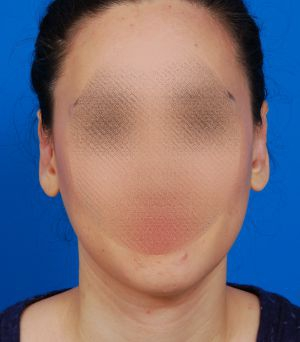 Ear Surgery (Otoplasty) Photos: Case 3 - After 2.5 Months