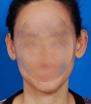 Ear Surgery (Otoplasty) Photos: Case 3 - before