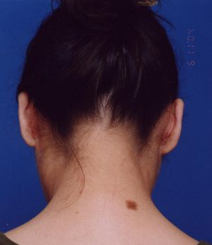 Ear Surgery (Otoplasty) Photos: Case 4 - After 2 Months