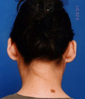 Ear Surgery (Otoplasty) Photos: Case 4 - before