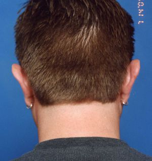 Ear Surgery (Otoplasty) Photos: Case 5 - before