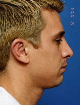 Ear Surgery (Otoplasty) Photos: Case 7 - After 3 Months