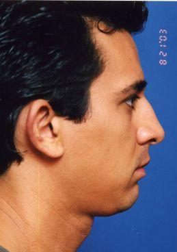 Ear Surgery (Otoplasty) Photos: Case 7 - before
