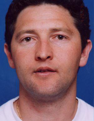 Ear Surgery (Otoplasty) Photos: Case 8 - before