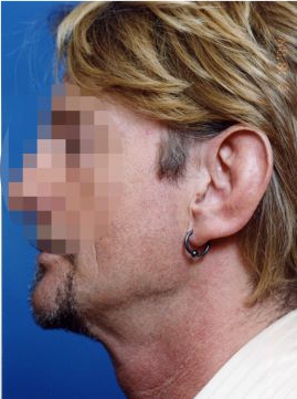 Ear Surgery (Otoplasty) Photos: Case 1 - before