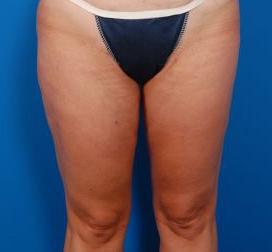 Liposuction Revision Photos: Case 2 - After 4 Months