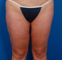 Liposuction Revision Photos: Case 2 - before