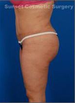 C-Section Scar Removal Before & After Case 2