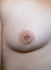 Nipple Reduction : Case 1 - before