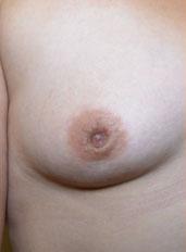 Nipple Reduction : Case 1