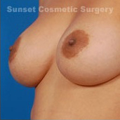 Nipple Reduction : Case 2 - after