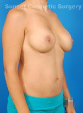Nipple Reduction : Case 3 - after