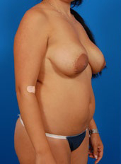 Nipple Reduction : Case 3 - before