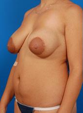 Nipple Reduction : Case 3