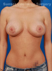Nipple Reduction : Case 4 - after