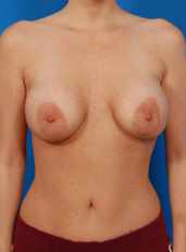 Nipple Reduction : Case 4 - before