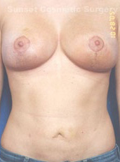 Nipple Reduction : Case 6 - after