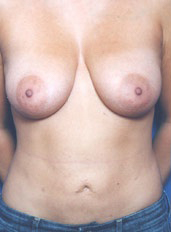 Nipple Reduction : Case 6 - before