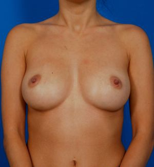 Nipple Reduction : Case 7 - after