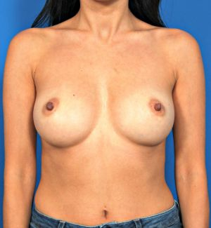 Nipple Reduction : Case 7 - before