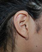Otoplasty – Ear Lesion : Case 2 - After 3 Weeks