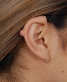 Otoplasty – Ear Lesion : Case 2 - before