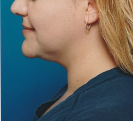 Submental Lipocontouring: Case 11 - before