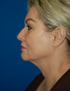 Submental Lipocontouring: Case 6 - After 6 Weeks
