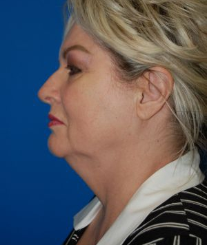 Submental Lipocontouring: Case 6 - before