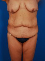 Thigh Lift Photos: Case 1 - before