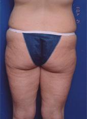 Thigh Lift Photos: Case 2