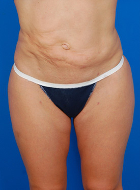 Tummy Tuck Photos: Case 1 - before