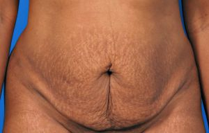 Tummy Tuck Photos: Case 10 - before