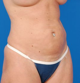 Tummy Tuck Photos: Case 12 - before