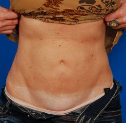 Tummy Tuck Photos: Case 12 - After 5 Years