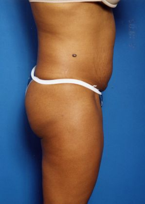 Tummy Tuck Photos: Case 1295 - before