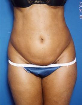 Tummy Tuck Photos – Case 13 - before