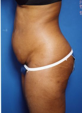 Tummy Tuck Photos – Case 13 - before