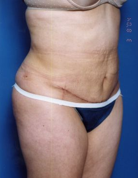 Tummy Tuck Photos: Case 14 - After 5 Weeks