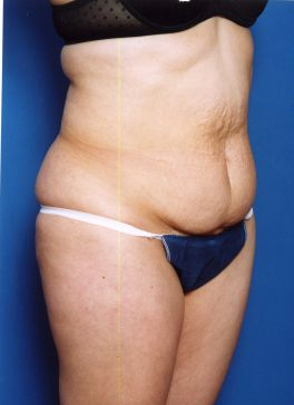 Tummy Tuck Photos: Case 14 - before