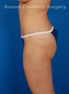 Tummy Tuck Photos – Case 2 - after