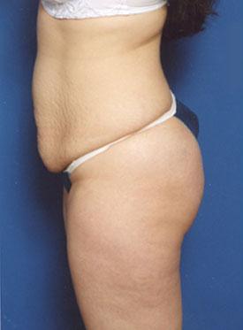 Tummy Tuck Photos – Case 2 - before