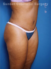 Tummy Tuck Photos: Case 4 - after