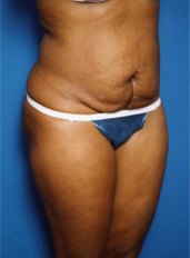 Tummy Tuck Photos: Case 4 - before