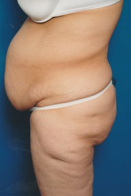 Tummy Tuck Photos: Case 5 - before