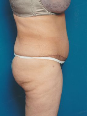 Tummy Tuck Photos: Case 5 - After 9 Weeks