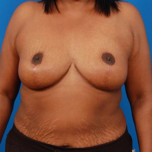 Tummy Tuck Photos: Case 8 - after