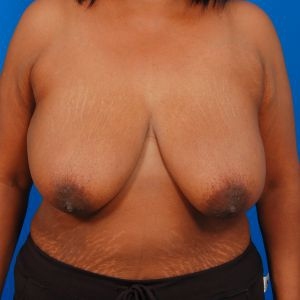 Tummy Tuck Photos: Case 8 - before